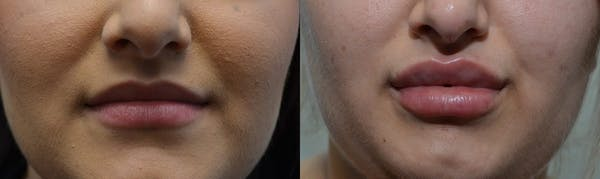 Lip Enhancement Gallery - Patient 4588510 - Image 1