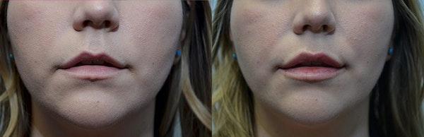 Lip Enhancement Gallery - Patient 4588521 - Image 1