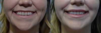 Lip Enhancement Gallery - Patient 4588521 - Image 2