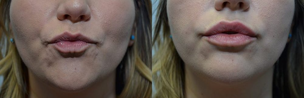 Lip Enhancement Gallery - Patient 4588521 - Image 3