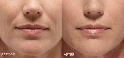 Lip Enhancement Gallery - Patient 4588524 - Image 10