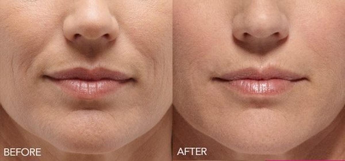 Lip Enhancement Gallery - Patient 4588524 - Image 1