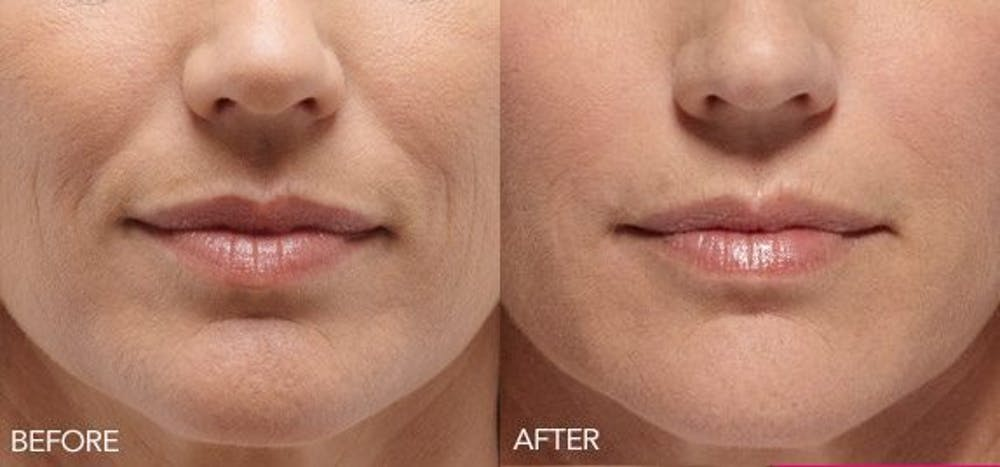 Lip Enhancement Gallery - Patient 4588524 - Image 1