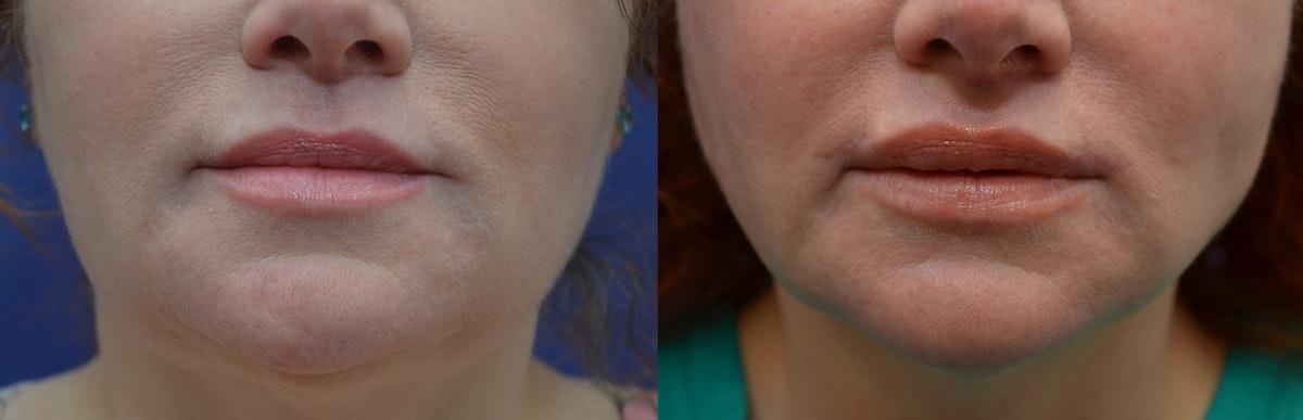 Lip Augmentation Gallery - Patient 4588530 - Image 1