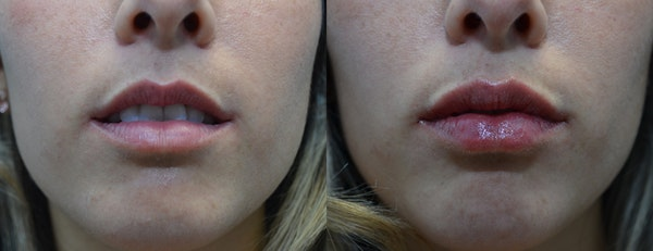 Lip Enhancement Gallery - Patient 4588526 - Image 1