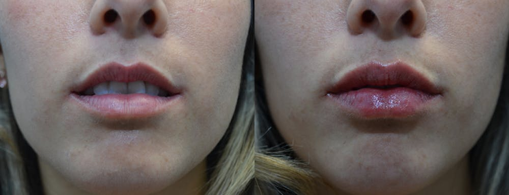 Lip Enhancement Gallery - Patient 4588526 - Image 1