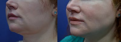 Lip Augmentation Gallery - Patient 4588530 - Image 2