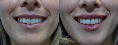 Lip Enhancement Gallery - Patient 4588526 - Image 2