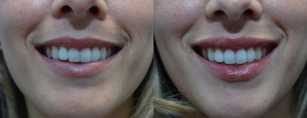 Lip Enhancement Gallery - Patient 4588526 - Image 2