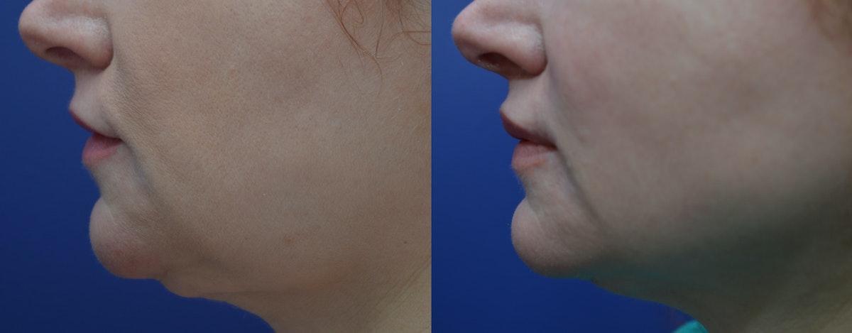 Lip Augmentation Gallery - Patient 4588530 - Image 3