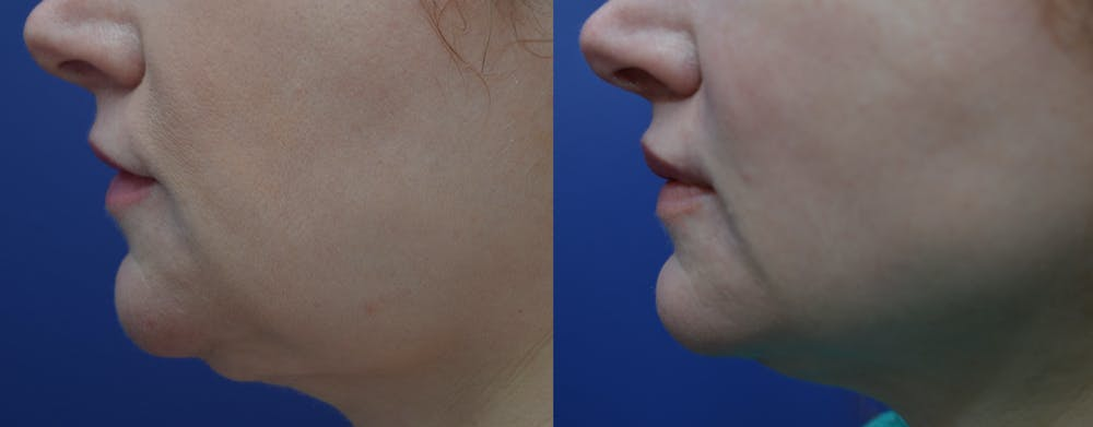 Lip Augmentation Gallery - Patient 4588530 - Image 3