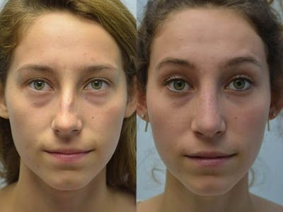 Rhinoplasty (Nose Reshaping) Gallery - Patient 4588537 - Image 2