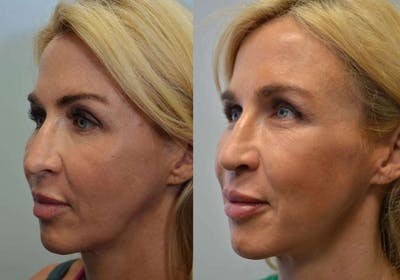 Revision Rhinoplasty Gallery - Patient 4588535 - Image 1