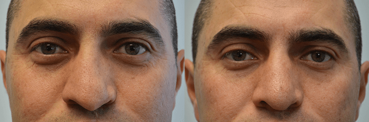 Revision Rhinoplasty Gallery - Patient 4588546 - Image 3