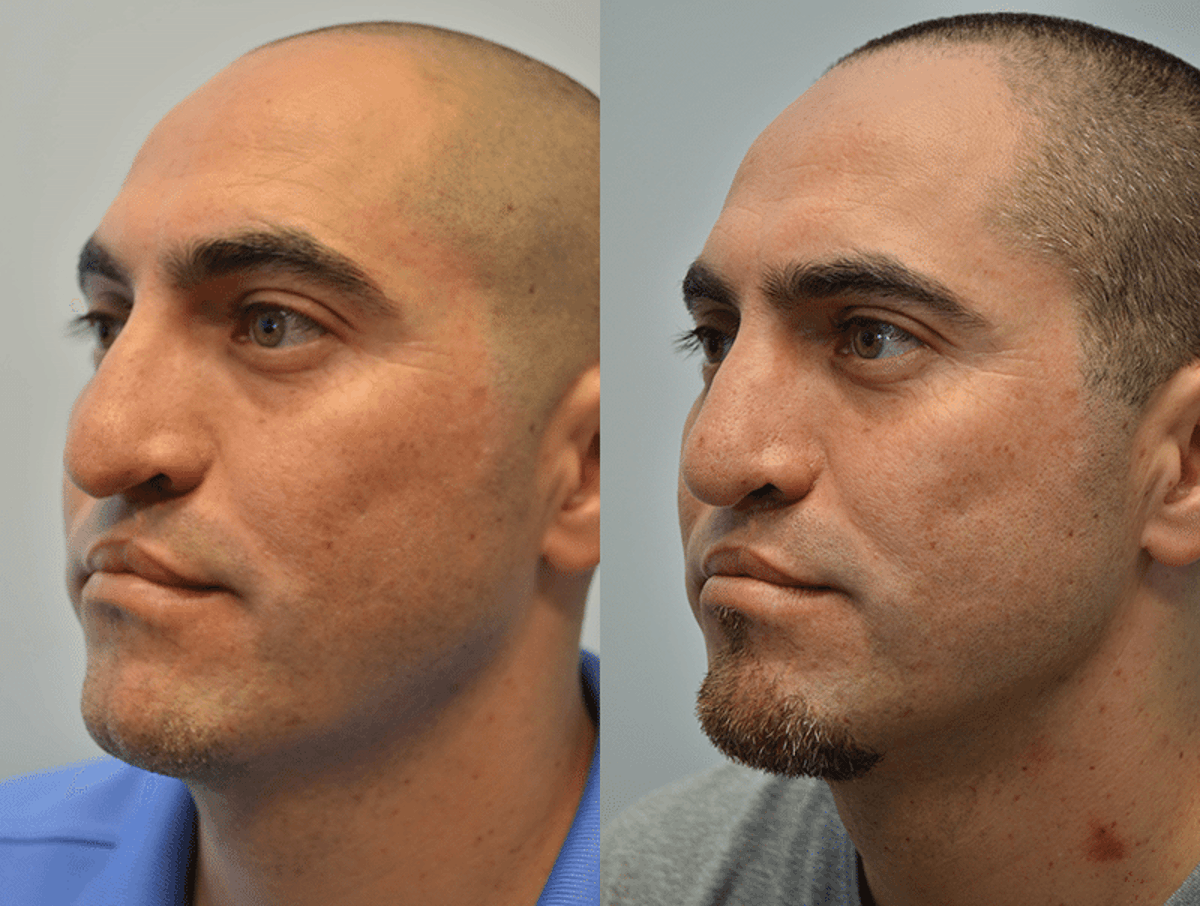 Revision Rhinoplasty Gallery - Patient 4588546 - Image 1