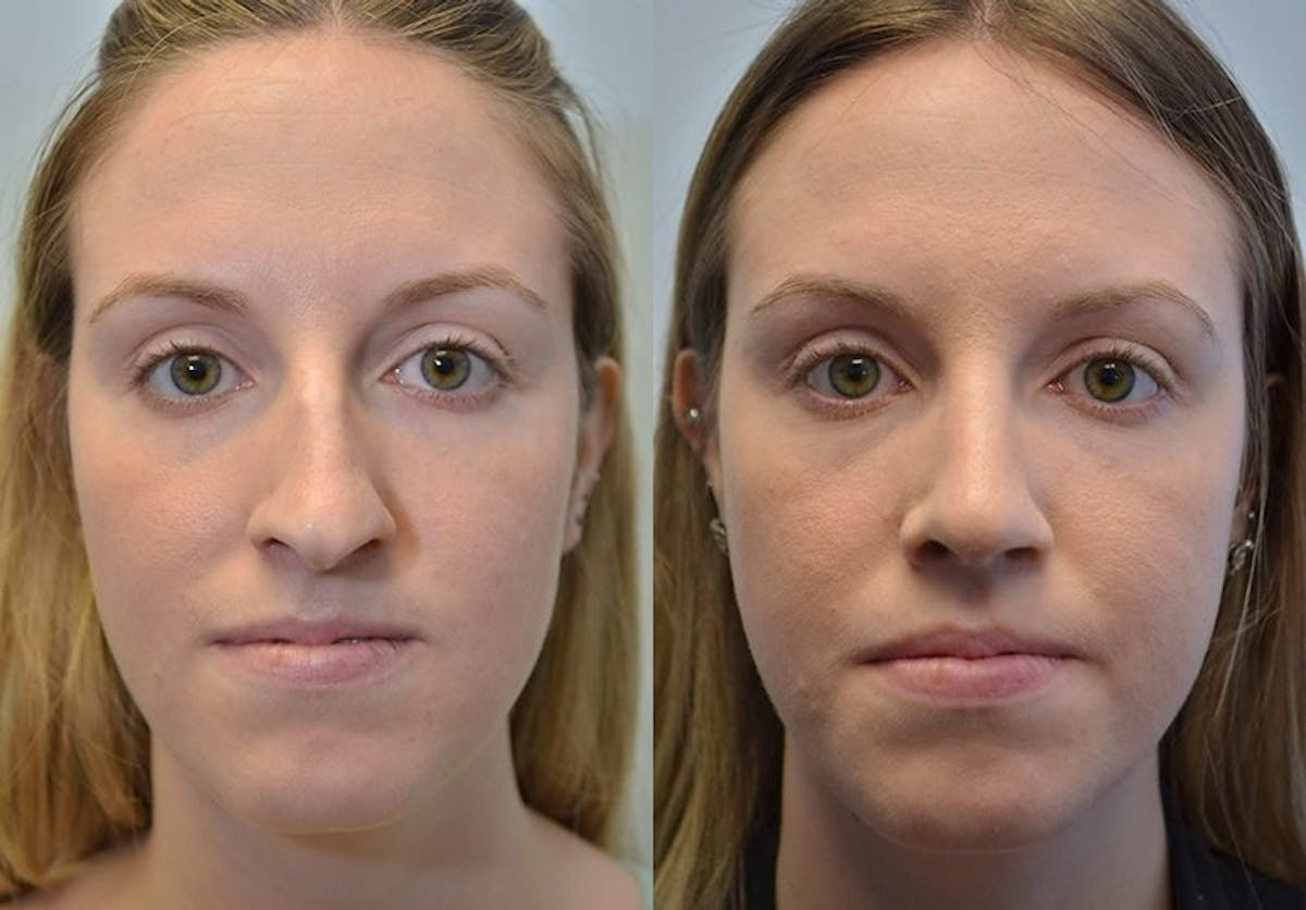 Rhinoplasty (Nose Reshaping) Gallery - Patient 4588547 - Image 1