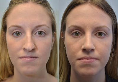 Rhinoplasty (Nose Reshaping) Gallery - Patient 4588547 - Image 3