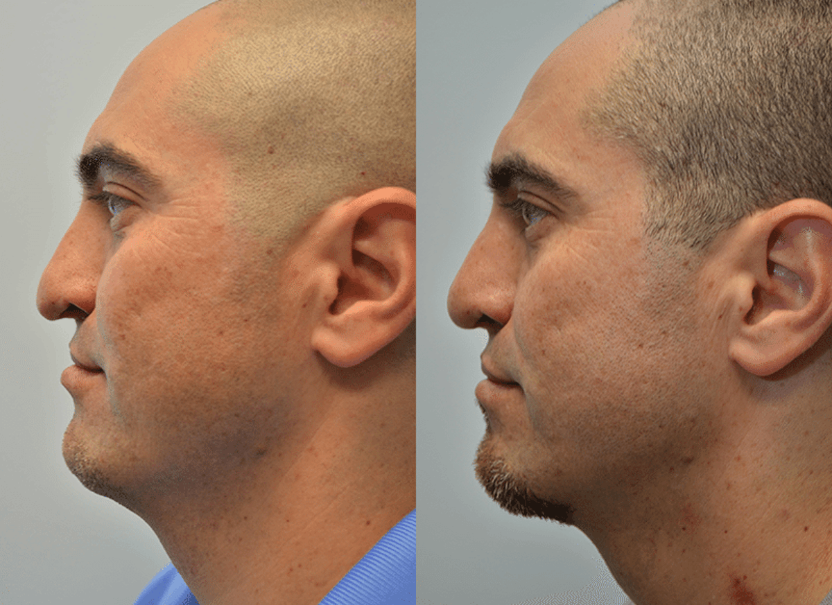 Revision Rhinoplasty Gallery - Patient 4588546 - Image 2