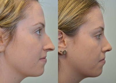 Rhinoplasty (Nose Reshaping) Gallery - Patient 4588547 - Image 2