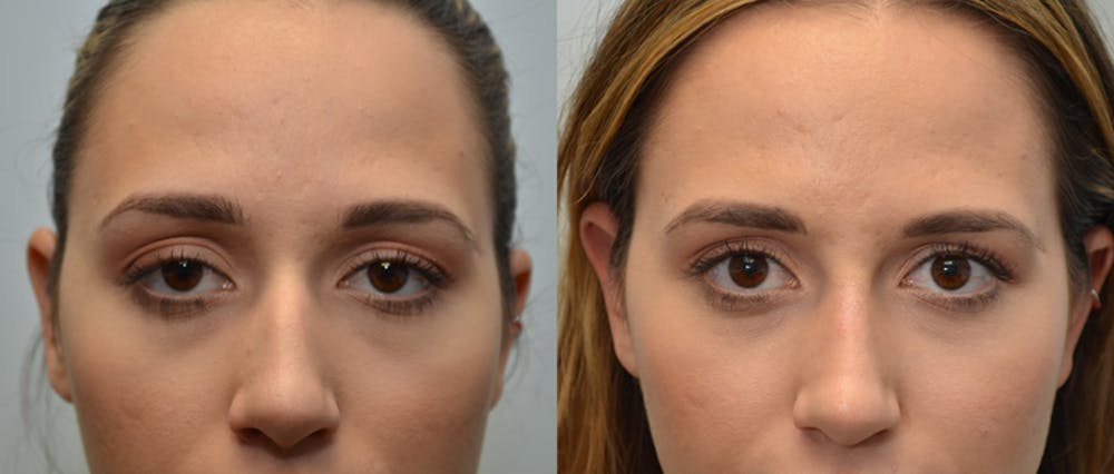 Non-Surgical Augmentation Gallery - Patient 4588549 - Image 1