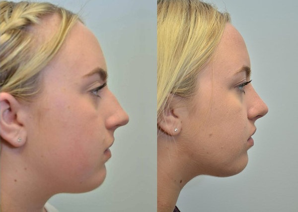 Rhinoplasty (Nose Reshaping) Gallery - Patient 4588550 - Image 1