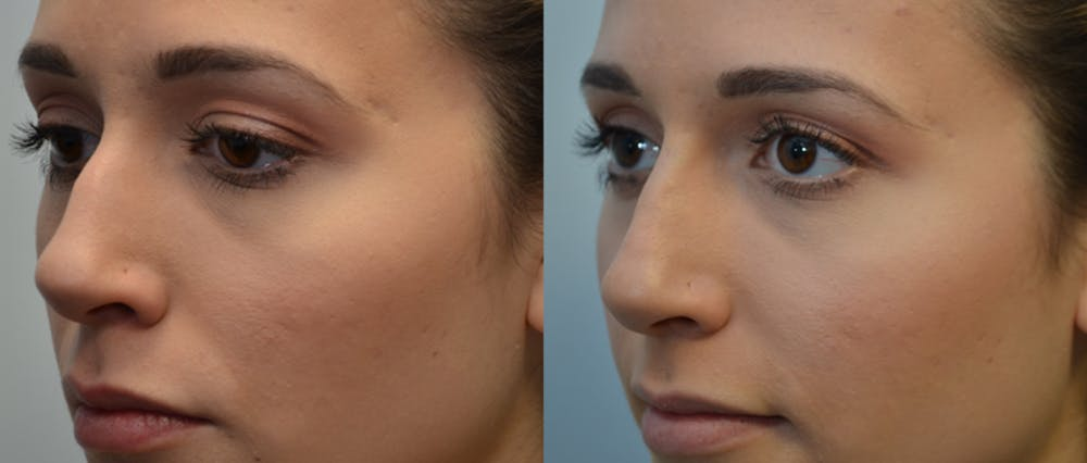 Non-Surgical Augmentation Gallery - Patient 4588549 - Image 2