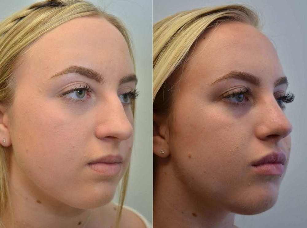 Rhinoplasty (Nose Reshaping) Gallery - Patient 4588550 - Image 3