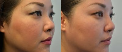 Non-Surgical Augmentation Gallery - Patient 4588551 - Image 1