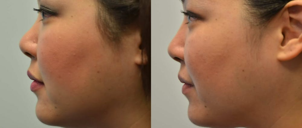 Non-Surgical Augmentation Gallery - Patient 4588551 - Image 2
