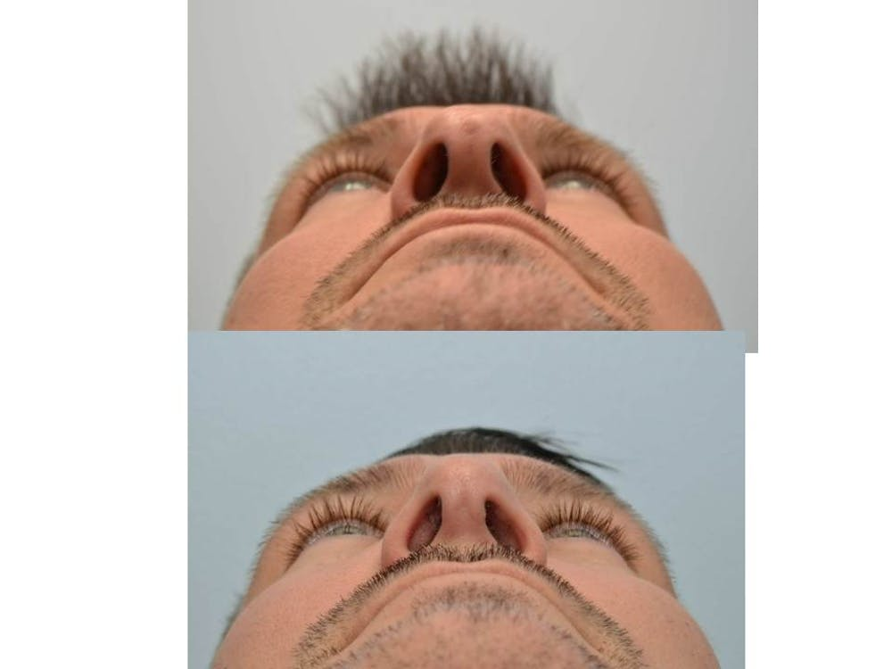 Rhinoplasty (Nose Reshaping) Gallery - Patient 4588554 - Image 4