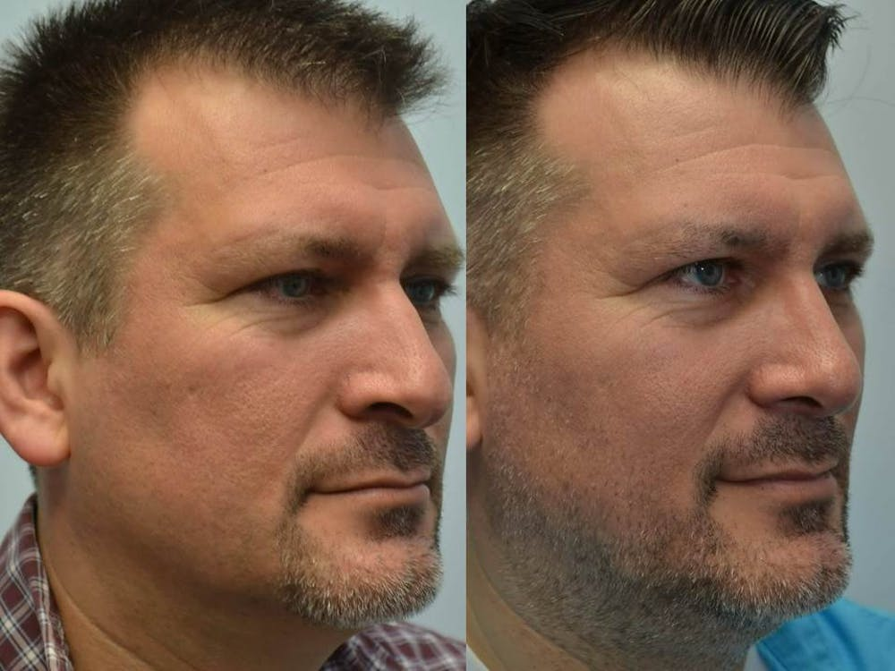 Rhinoplasty (Nose Reshaping) Gallery - Patient 4588554 - Image 1