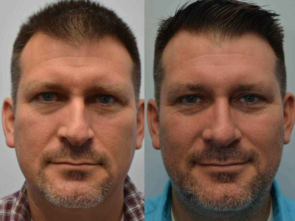 Rhinoplasty (Nose Reshaping) Gallery - Patient 4588554 - Image 2