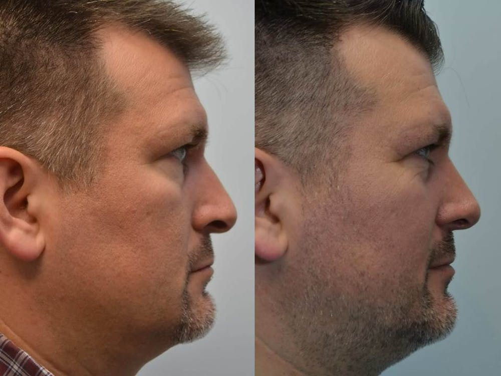 Rhinoplasty (Nose Reshaping) Gallery - Patient 4588554 - Image 3