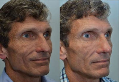 Rhinoplasty (Nose Reshaping) Gallery - Patient 4588555 - Image 1