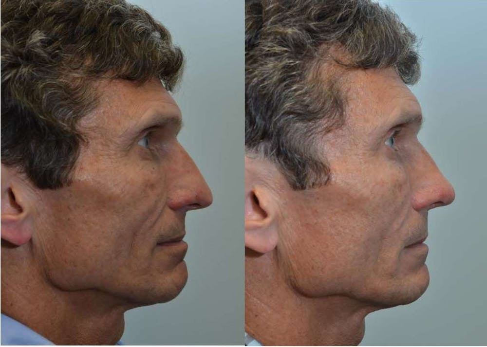 Rhinoplasty (Nose Reshaping) Gallery - Patient 4588555 - Image 2