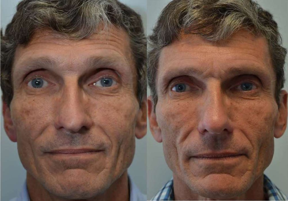 Rhinoplasty (Nose Reshaping) Gallery - Patient 4588555 - Image 3