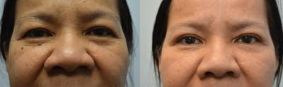 Rhinoplasty (Nose Reshaping) Gallery - Patient 4588556 - Image 8