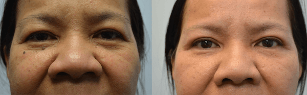 Rhinoplasty (Nose Reshaping) Gallery - Patient 4588556 - Image 1