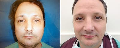 Rhinoplasty (Nose Reshaping) Gallery - Patient 4588557 - Image 9