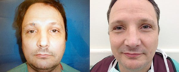 Rhinoplasty (Nose Reshaping) Gallery - Patient 4588557 - Image 1