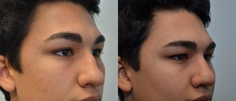 Rhinoplasty (Nose Reshaping) Gallery - Patient 4588559 - Image 2