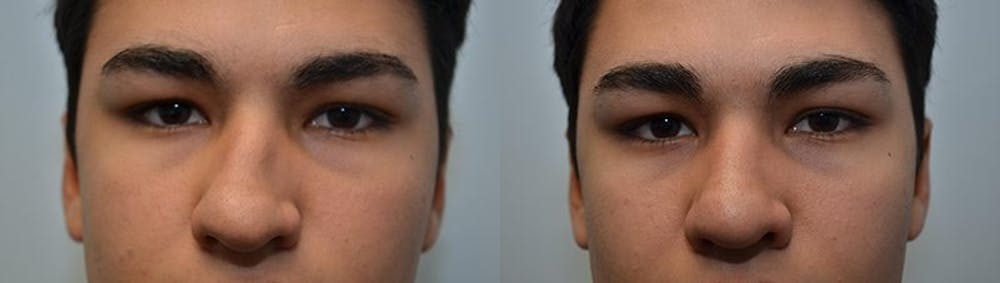 Rhinoplasty (Nose Reshaping) Gallery - Patient 4588559 - Image 3