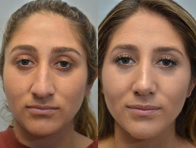 Rhinoplasty (Nose Reshaping) Gallery - Patient 4588561 - Image 11