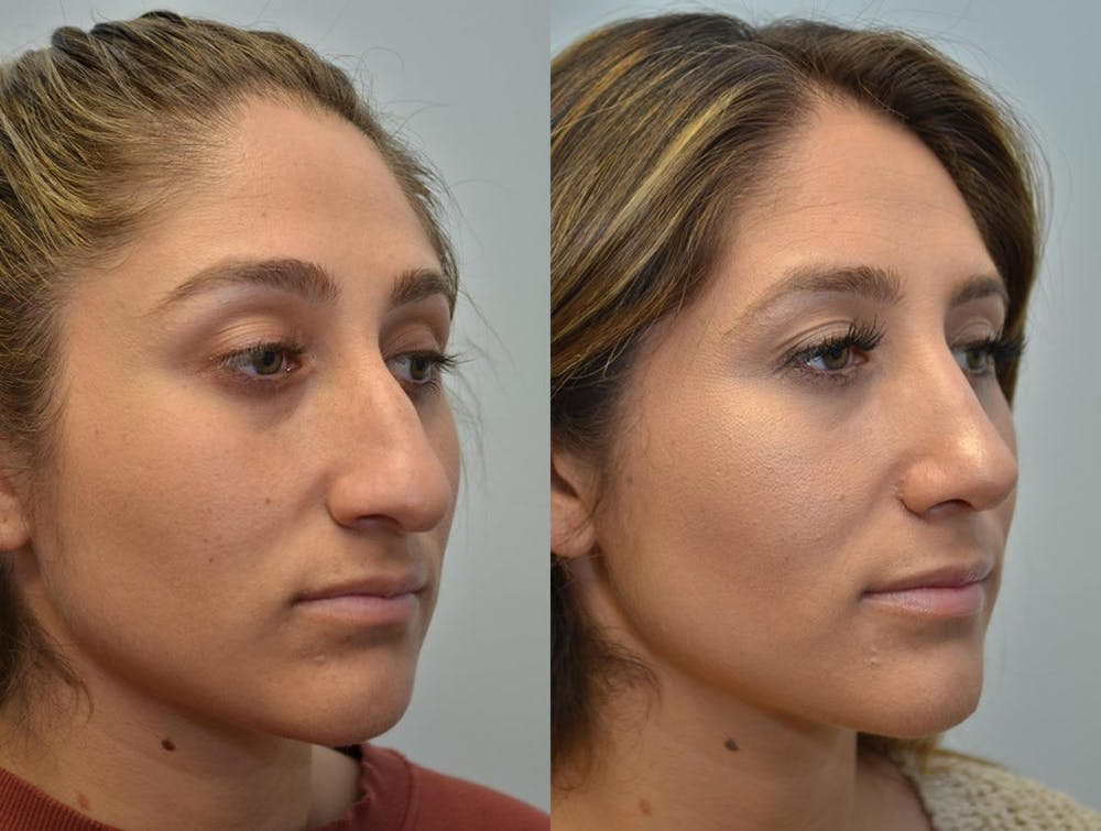 Rhinoplasty (Nose Reshaping) Gallery - Patient 4588561 - Image 2