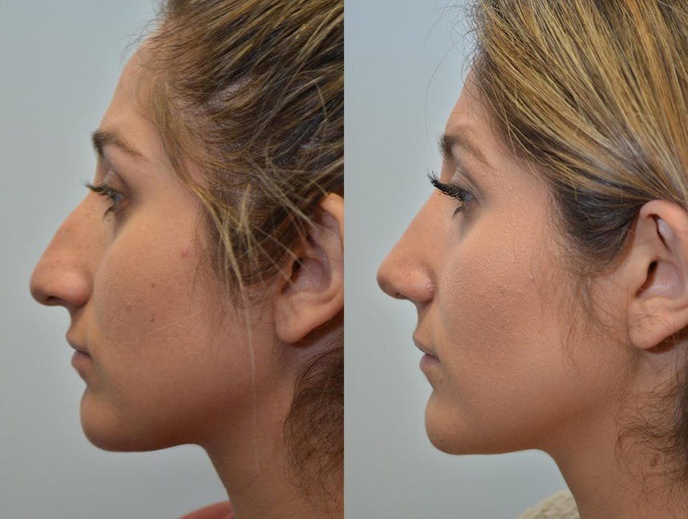Rhinoplasty (Nose Reshaping) Gallery - Patient 4588561 - Image 3