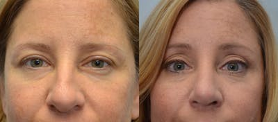 Rhinoplasty (Nose Reshaping) Gallery - Patient 4588562 - Image 12