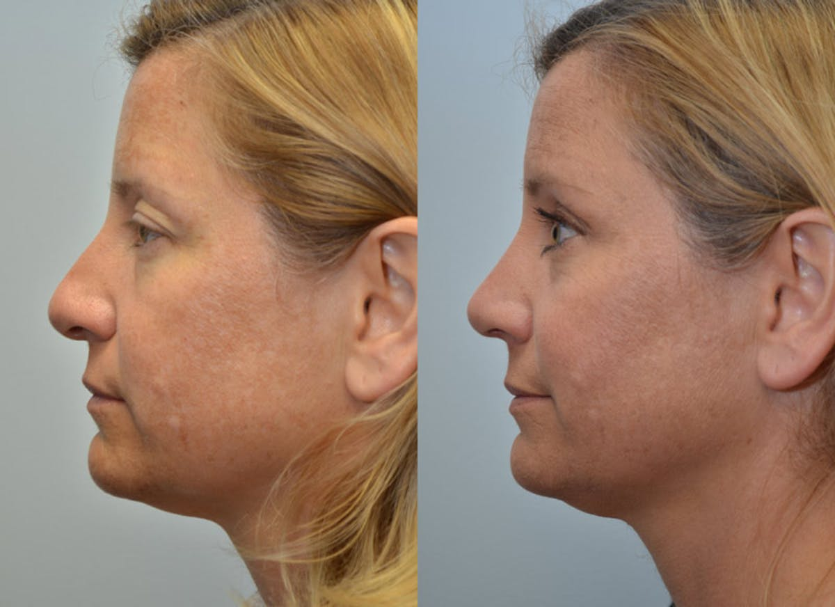 Rhinoplasty (Nose Reshaping) Gallery - Patient 4588562 - Image 2