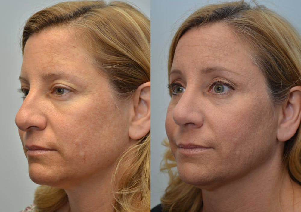Rhinoplasty (Nose Reshaping) Gallery - Patient 4588562 - Image 3