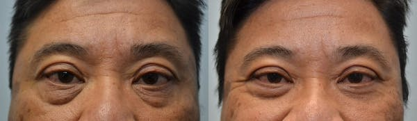 Asian Eyelid Surgery Gallery - Patient 4588565 - Image 1