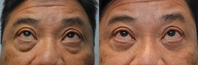 Asian Eyelid Surgery Gallery - Patient 4588565 - Image 2